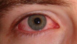 Flu Eye